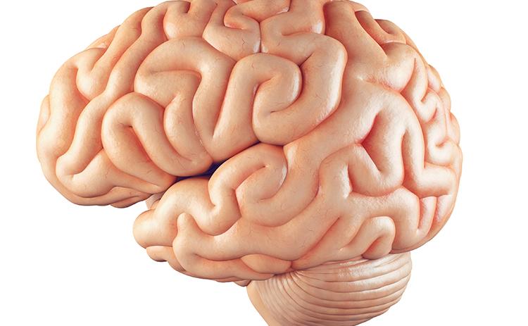 עורך דין לאירוע מוחי, שבץ מוחי, תאונת עבודה
